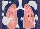8 dấu hiệu cảnh báo phổi có vấn đề