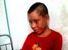 Chủ tịch Gia Lai chỉ đạo điều tra vụ hành hung người làm thuê