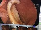 Nội soi lấy phần tai bị cắt đứt trong bụng một học sinh