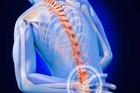 Coi chừng tàn phế vì coi thường đau lưng