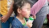 Bắt khẩn cấp cô giáo đánh trẻ nứt xương hàm ở Bình Chánh