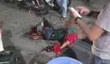 Kinh hoàng 1 thanh niên bị rượt chém lìa cánh tay