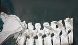 Té trượt đốt sống lưng từ nhỏ, chịu đựng gần 70 tuổi mới mổ