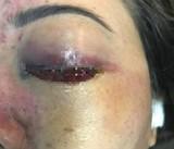'Sờ gáy' spa làm mù mắt cô gái sau nâng mũi