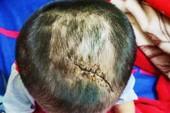 Bé 3 tuổi nghi bị cha dượng bạo hành