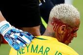 Neymar đổ máu ở Nam Mỹ, trời Âu đau lòng