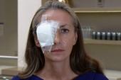 Hi hữu: Kiện BTC vì bị quả bóng golf bay trúng làm mù mắt