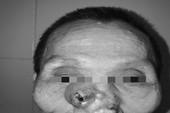 Tái tạo lại mũi, má cho bệnh nhân mắc bệnh ung thư