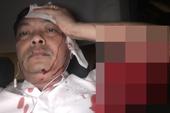 Giám đốc nhân sự Trung Nguyên bị đâm