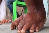 Việt Nam được công nhận loại trừ bệnh phù chân voi