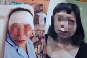 Khởi tố vụ án chồng đánh vợ dã man ở Quảng Ninh