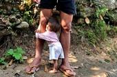 Hai bé tý hon chờ vào Sài Gòn khám bệnh