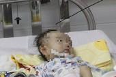Bé mắc 3 dị tật lạ được cứu nhờ sức sống mãnh liệt