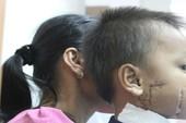 Kinh hoàng bé trai bị cánh quạt công nghiệp cắt thấu xương hàm
