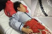 Bé trai 10 tuổi hoại tử ruột vì nuốt 9 viên bi nam châm