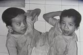 30 năm ngày tách rời cặp song sinh Việt-Đức đi vào lịch sử