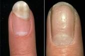 Phương pháp mới cho bệnh lupus ban đỏ và vẩy nến tự miễn