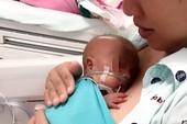 Sau 9 tuần sinh non, bé từ 600g tăng lên 1500g