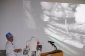 Ký sinh trùng đầy trong cơ thể lính Triều Tiên đào tẩu