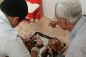 Nhiều người ở Bình Phước bị 'dính' sán dây heo