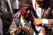 Vũ khí Mỹ và mạng người Yemen