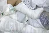 Bé gái 13 tuổi rơi từ lầu 3 chấn thương nặng