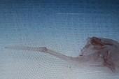 Xương cá hình cây dù chui vào phổi