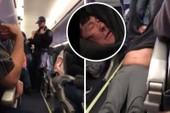 Toàn cảnh vụ bê bối United Airlines 'kéo lê hành khách'