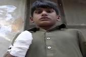 Cậu bé 13 tuổi bị bà chủ chặt tay vì đòi tiền lương