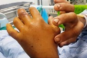 Suýt mất mạng vì chữa rắn cắn bằng thuốc Nam