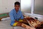 Cầu thủ V-League bị đạp gãy chân phải dưỡng thương gần một năm