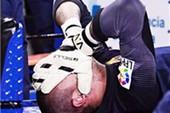 Dính chấn thương nghiêm trọng, Valdes lỡ World Cup 2014