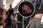 Hành khách bị đánh, kéo lê khỏi máy bay gây phẫn nộ