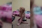 Bé gái liệt hai chân vì ve chó cắn sau đầu