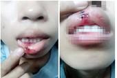 Công an Đồng Nai làm việc với nạn nhân vụ clip bị đánh dập môi
