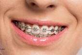 Nuốt dây niềng răng vào bụng suốt 10 năm mà không biết