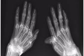 Dùng vàng khâu khớp tay để trị thấp khớp