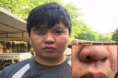 Phóng viên bị hành hung khi vừa rời khỏi UBND phường