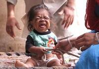 Kỳ lạ chàng thanh niên 23 tuổi trong hình hài em bé 1 tuổi