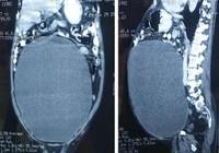 Bàng quang tích 11 lít nước do bị tiểu đường