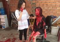Cô gái 21 tuổi bị tạt sơn khắp người