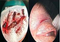 'Cân não' gắp 10 mảnh gỗ nằm sâu trong hốc mắt người đàn ông