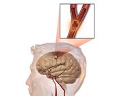 Bước đột phá của y học trong điều trị Đột quỵ não