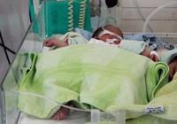 Bé gái sinh non bị bỏ trong túi nilon trước nhà dân