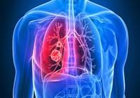 Những dấu hiệu cảnh báo ung thư phổi bạn chớ bỏ qua