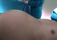 Phẫu thuật khối u quái nặng 10 kg cho bệnh nhân 84 tuổi