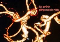 Đau đầu kinh niên dễ gặp phình mạch máu não