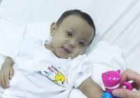 Ca ghép gan đặc biệt với bệnh nhi 18 tháng tuổi