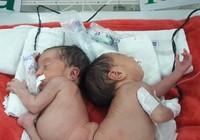 Hai bé song sinh dính liền mông, không thấy hậu môn