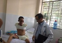 Cắt hai tay và 1 chân cứu bệnh nhân bị phỏng điện